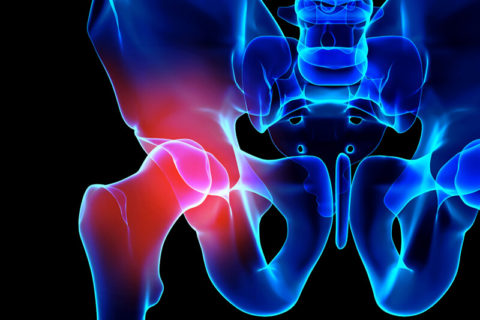 hip arthroscopy for osteoarthritis or hip arthritis