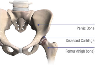 hip replacement in the Eau Claire, Altoona, and Chippewa Falls area.
