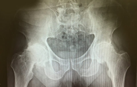 bilateral total hip arthroplasty